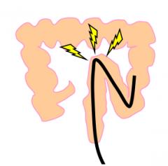腸管が引っ張られ痛みが発生
