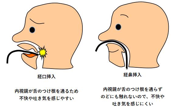 経口挿入と経鼻挿入1