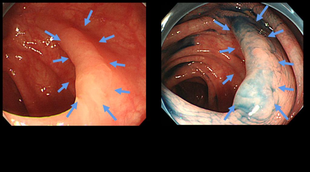 大腸インジゴ