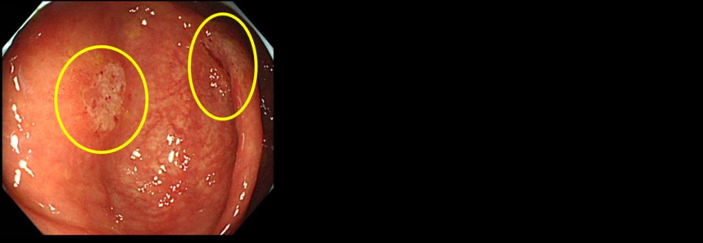 アメーバ腸炎
