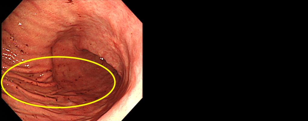 表層性胃炎
