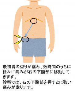 急性虫垂炎